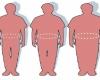 W uzdrowisku Rabka- Zdrój walczą z otyłością